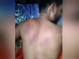 Girl's family members beat her up severely by girlfriend's family